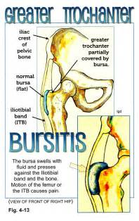 Hip Bursitis Pain