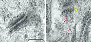 Iaspp Deficiency Weakens Desmosome Function In Vivo