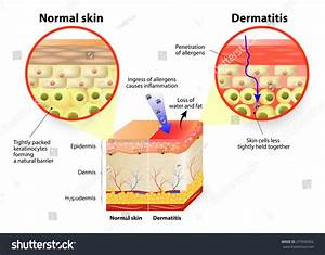 Skin Disease Dermatitis Eczema Labeled Diagram Stock