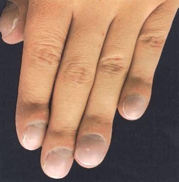 blickdiagnostik nagelveraenderungen klinik  medici