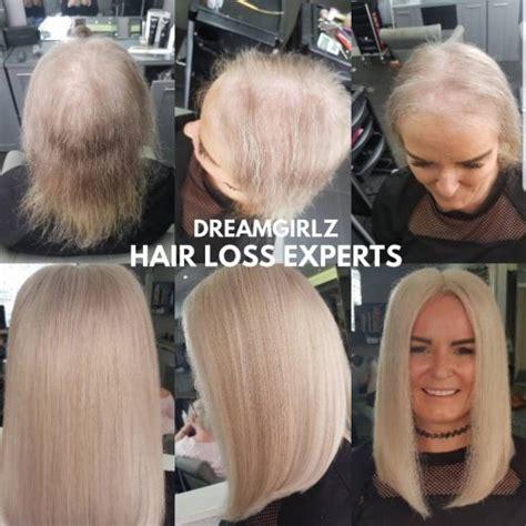 hair loss dreamgirlz hair extensions