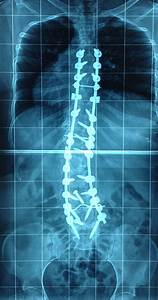 Post-surgical Scoliosis