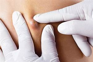Cysts On Skin  Pictures Of What They Look Like