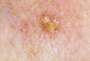 Early Skin Cancer - Early Signs of Skin Cancer - Skin Cancer Pictures ... Skin Cancer