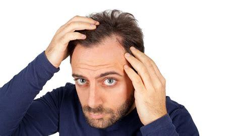 mens hair loss solutions    natural remedies