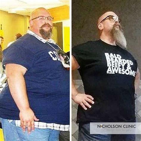 pin  weight loss surgery testimonials