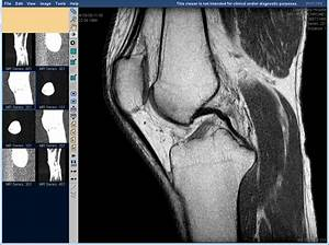 Почему болит колено артроз лечение