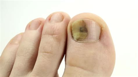 toenails with fungal infection sick nail fungus of big