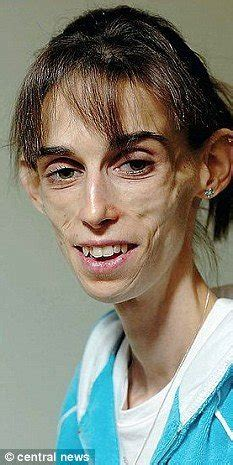 kate chilver  worst case  anorexia died