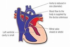 Image Gallery heart ventricles problem