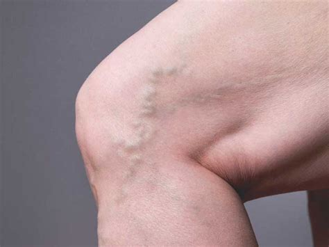 Complications Of Dvt What To Expect And Tips For Prevention