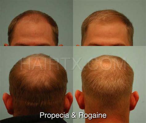 Propecia (Finasteride) Dallas, Hair Growth Medicine Plano, Tx