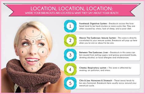 Hormone Acne Treatment Witch Hazel