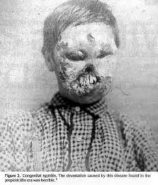 congenital syphilis - Tumblr Congenital syphilis