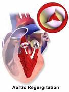 Aortic valve insuffici...Aortic Regurgitation