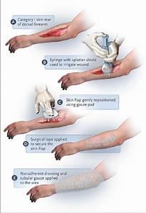 Treatment Of A Category I Skin Tear Of The Dorsal Forearm