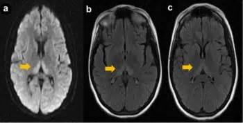 Figure 1  Brain magnet...