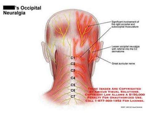 occipital neuralgia symptoms treatment  surgery occipital neuralgia