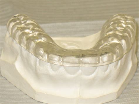 What Are Bite Guards?   Buckhead Dental Partners