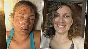 How Woman Recovered From Facial Burns After Falling On Hot