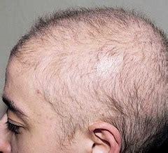 Hair Flashcards   Quizlet
