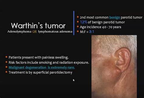warthins tumor  images tumor salivary gland
