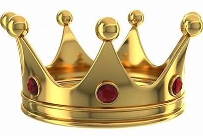 Bridges Crown Crowns Teeth Damira Smile Dental
