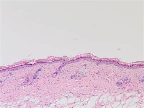 humane papillomviren beguenstigen die entstehung von