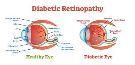 diabetic retinopathy orchard park optometry