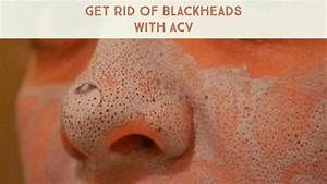 How Apple Cider Vinegar Used To Get Rid Of Blackheads
