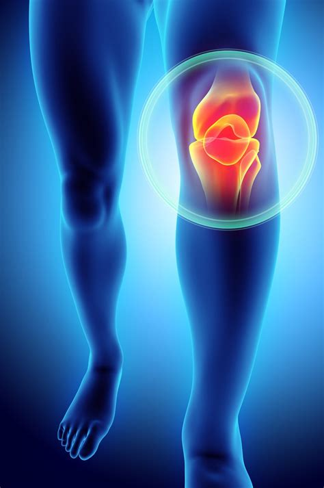 recovery time   patellar tendon rupture
