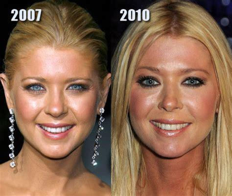 10 Best Plastic Surgery Makeovers (best Plastic Surgery