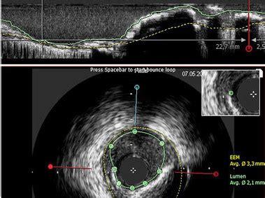 intravascular analysis software caas ivus oct esaote