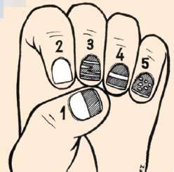 Лазерная технология лечения грибка ногтей