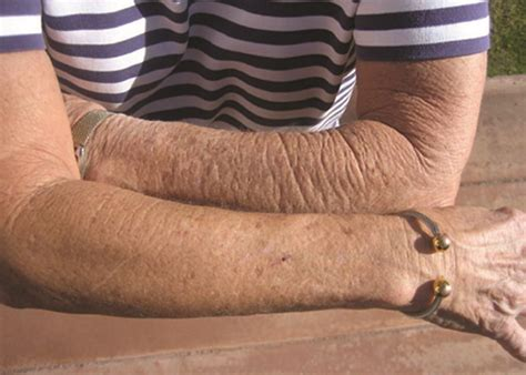 Arbonne Before and After - Dry Arms   This independent