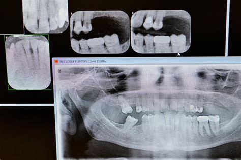 kids  dental  rays   york times