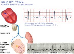 fig 19 2 d sinus arrhythmia nonsinus atrial rhythm the  Heart Diseases Arrhythmia