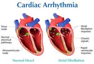 Atrial Fibrillation Heart Rhythm