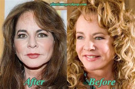 17 Best Images About Celebrity Plastic Surgery On