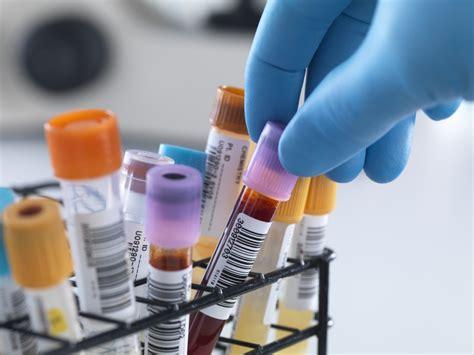 preclinical  clinical sample analysis covance