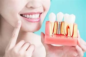 A Guide To Dental Implant Treatment  U2013 Namaste Beauty