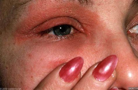 Nikkelallergie make up