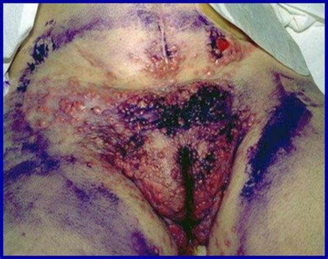 Images Of Blue Waffles Blue Waffle Disease Causes Symptoms Treatment And Pictures