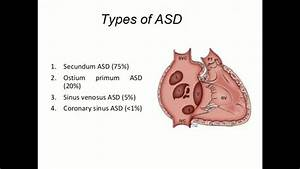 Sinus Venosus Atrial Septal Defect
