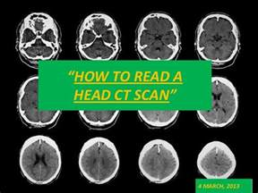cat scan of brain basics of ct