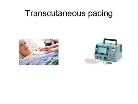 The update brought changes in chapter v of nomenclature, regarding the creation of new codes for ultrasound. Pacemakers and Implantable Defibrillators Worldwide