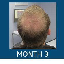 Amazon.com: Scalp Med Men's 4-Month Regrowth Kit