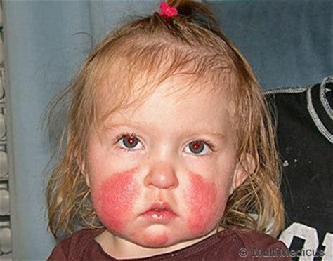 Herpes utslag i ansiktet
