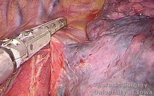 Esophagectomy  Three-incision  Mckeown