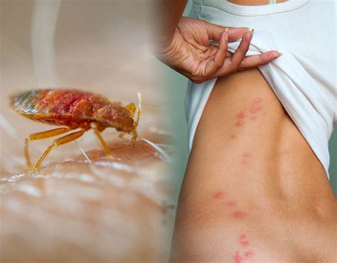 Rid Of Bed Bugs by Bed Bug Bites Five Signs To Look For And How To Get Rid